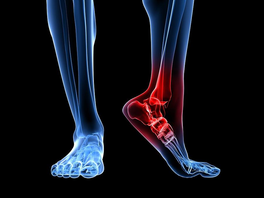 Боли в костях ног на рентгене