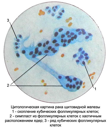 citologiya-schitovidnoy-zhelezy