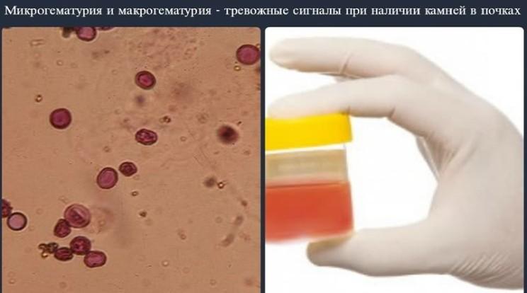 Микро и макрогематурия почек