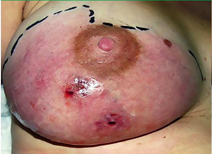 Маститоподобная опухоль