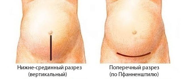 Два метода проведения разреза при лапароскопии