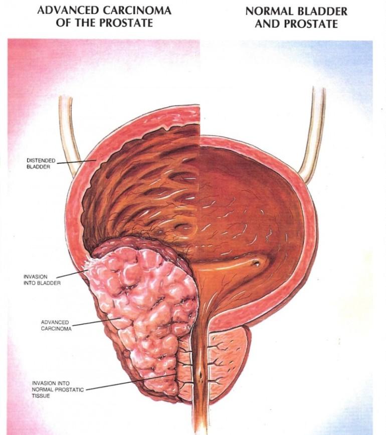 Частое мочеиспускание признаки простатита