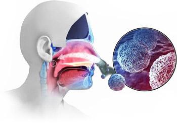 Инфекции, которые ппадают с воздухом в носоглотку