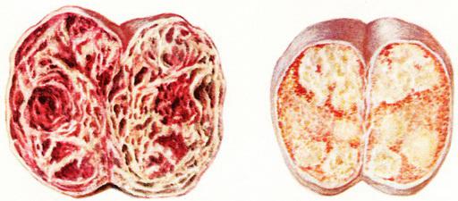 Яички и опухоль