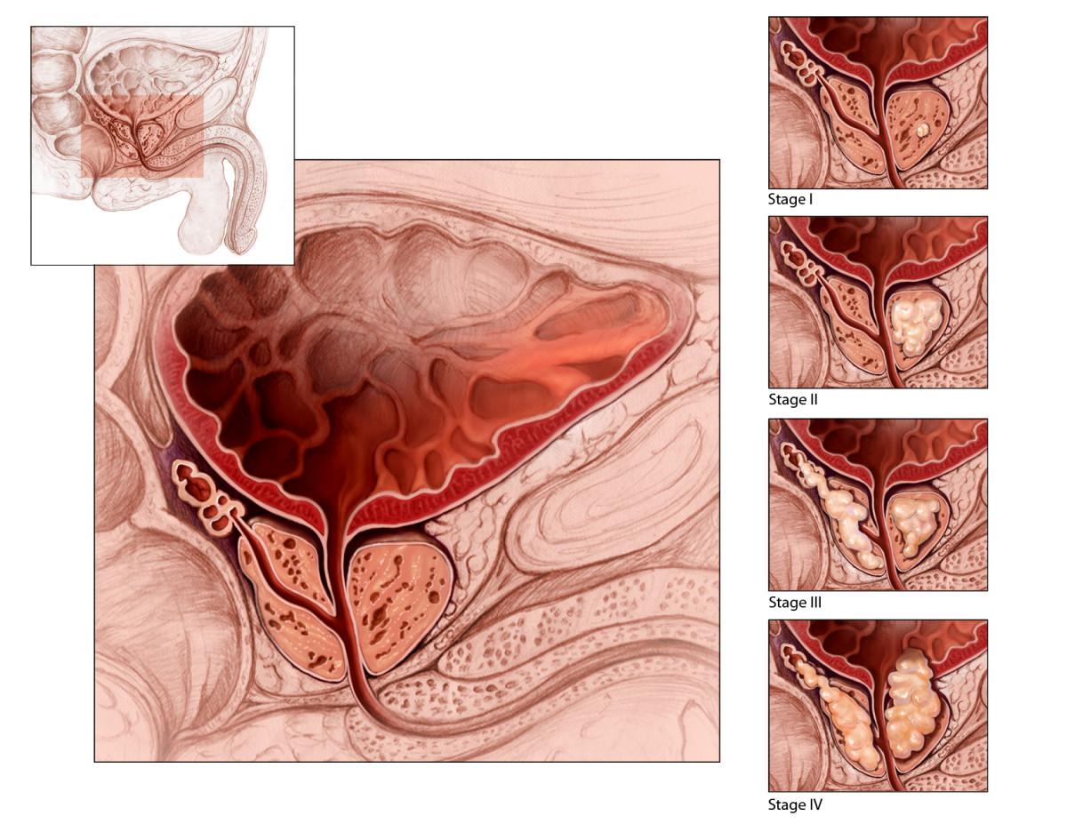 Альвеолит после удаления зуба — лечение сухой лунки, фото