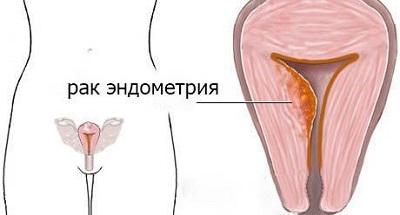 Патологичекий процесс эндометрия матки