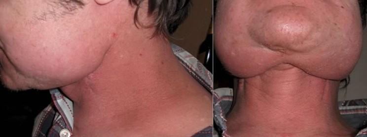 Рак в шейном отделе на горле