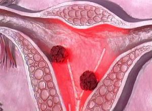 Образование патологии на схеме матки