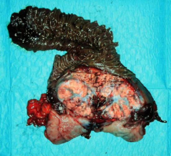 метастазы в головку поджелудочной железы