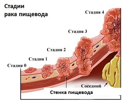 Наглядное пособие стадий патологии пищевода