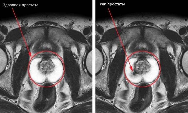 Ренгеновский снимок здоровой и пораженной раком простаты.
