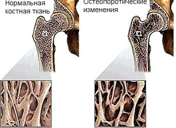 Остеопоротические изменения костной ткани
