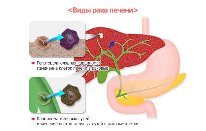 Некоторые виды рака печени