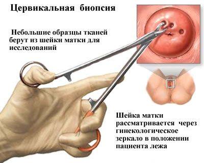 Биопсия цервикальная