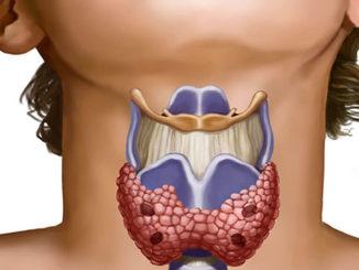 Схематичное изображение щитовидки