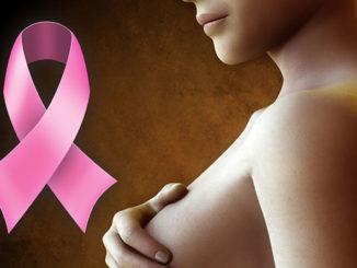 Боли в грудине у женщин