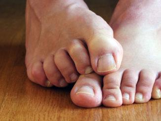 Пока ещё здоровые ногти