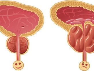 Патология предстательной железы