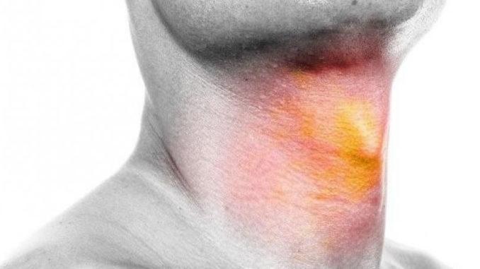 Раковые признаки в горле