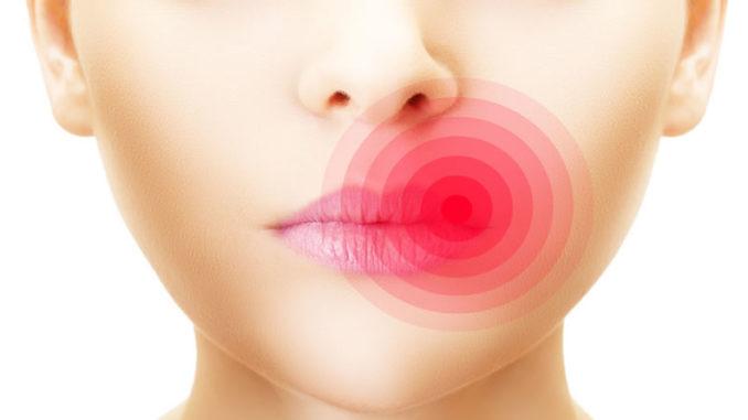 Очаг распространения рака на губах