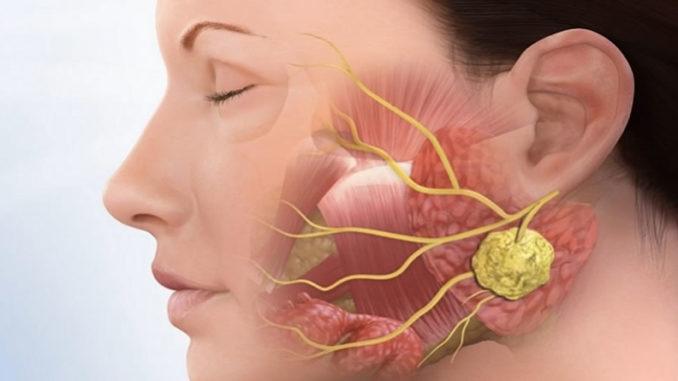 Область поражения раком слюнных желёз